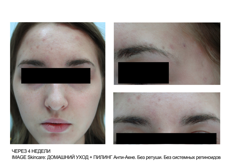 Medical References Accutane And Other Retinoids
